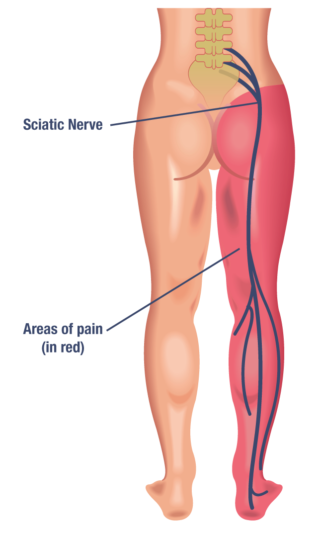 What Is Sciatica Central Coast Spinal Care Centre